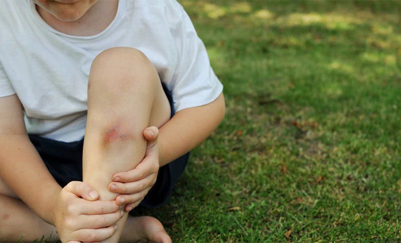 Çocuğunuzun Vücudundaki Morluklar Lösemiye İşaret Edebilir