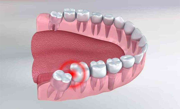 Yirmilik Dişler Çekilmezse Ne Olur